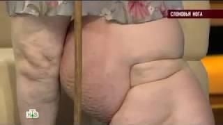 """Иван Макаров в передаче """"Говорим и показываем"""" на телеканале НТВ: Слоновья нога."""