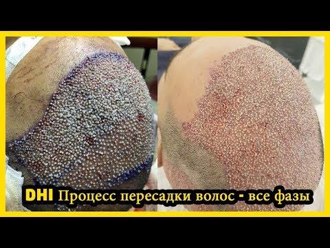 DHI Процесс пересадки волос - все фазы