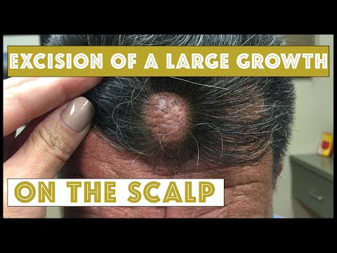 Removing this Large Growth on the Frontal Scalp of a very nervous patient