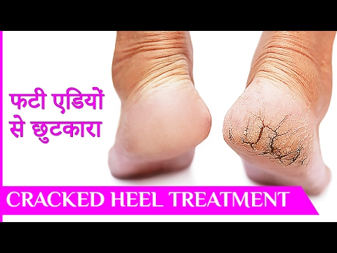 फटी एड़ियां से छुटकारा पाये - Cracked Heels Home Remedy, Crack heel repair, Crack heel treatment