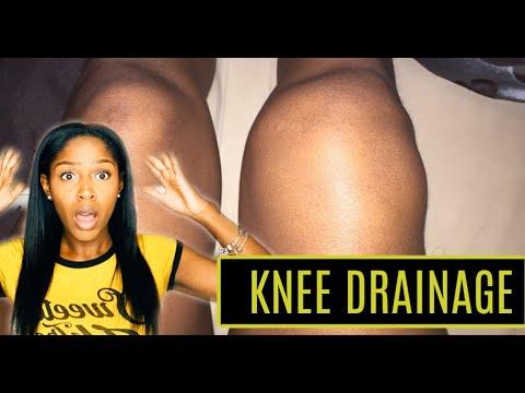 Story Time: {RAW FOOTAGE} My Knee Aspiration {PICTURES} + Knee Drainage + Rheumatoid Arthritis