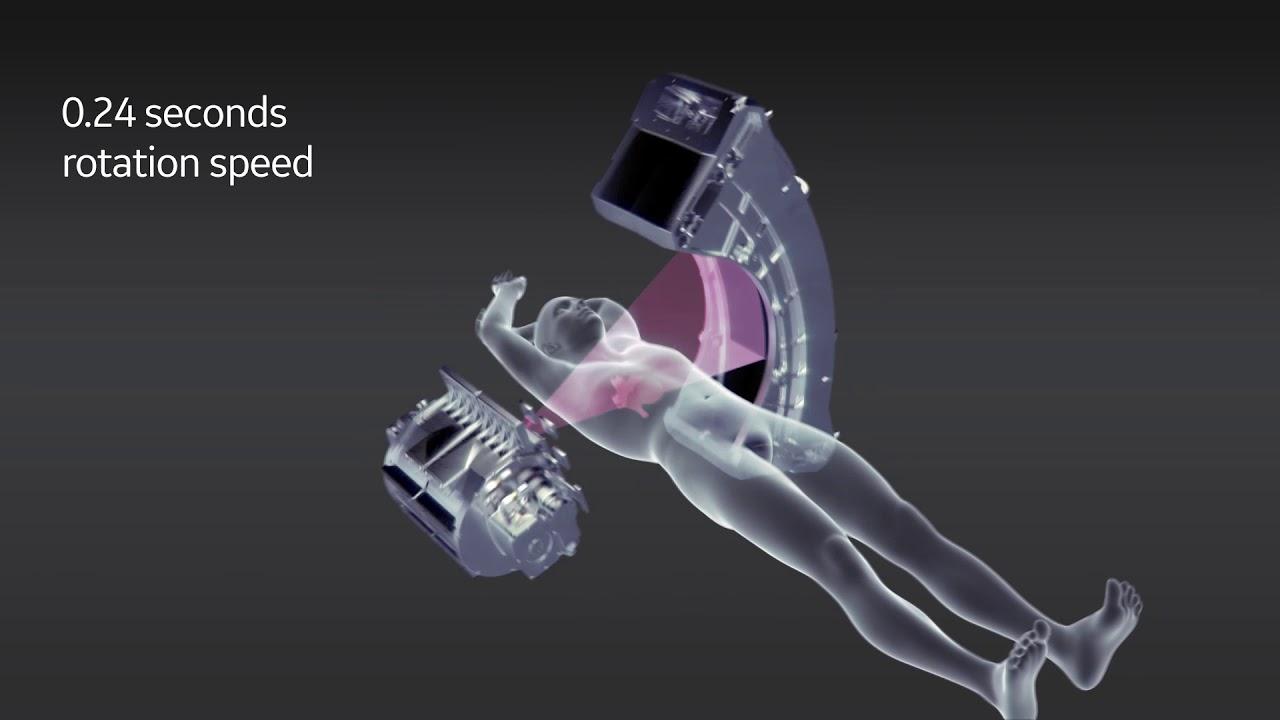 Homepage | Arineta | cardiac CT scanners | image of the heart
