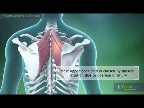 Upper Back Pain Reasons