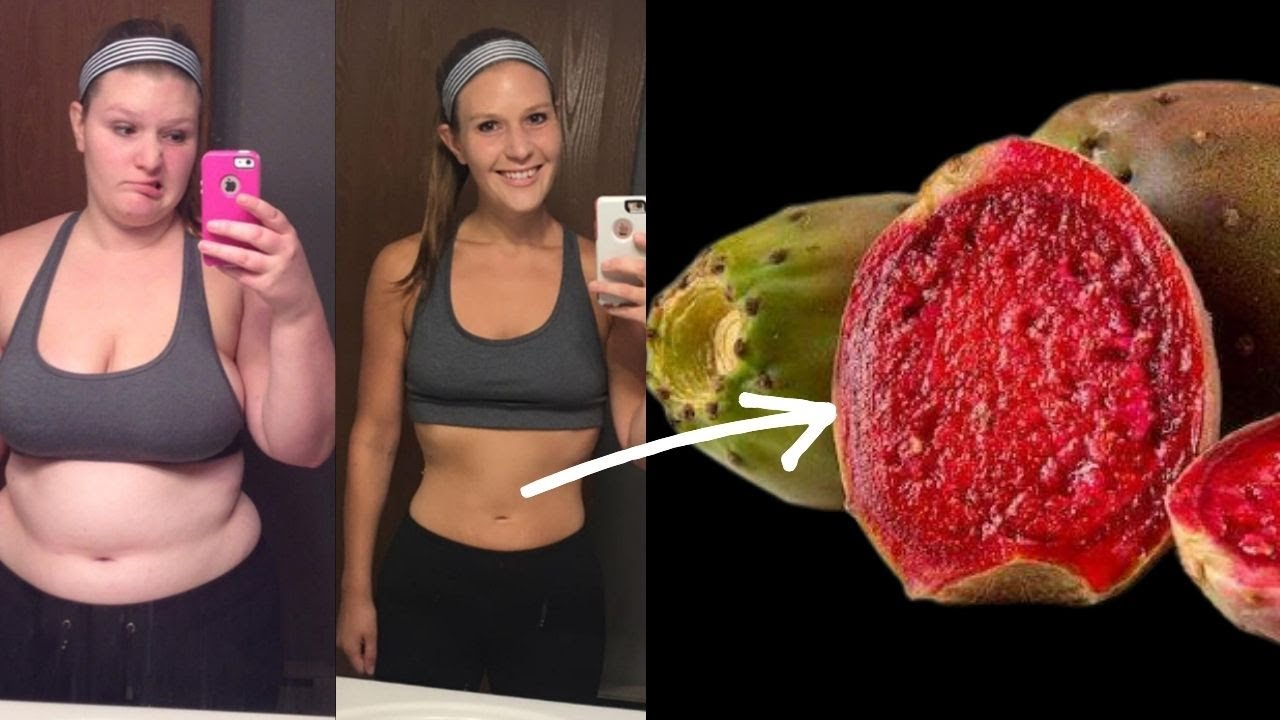 Can Prickly Pear Help You Lose Weight? - Fruits That'll Help You Lose Weight
