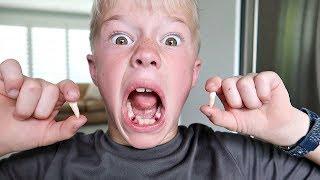 Cody got 2 Teeth Pulled