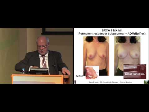 Анализ дозы гена HER2/neu при раке молочной железы (РМЖ