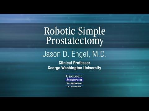 Robotic Simple Prostatectomy Youtube