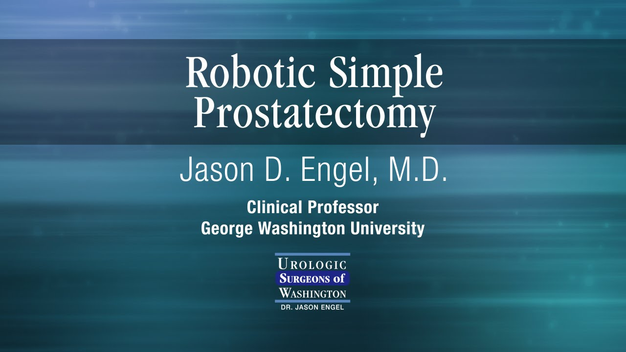 Robotic Simple Prostatectomy For Bph Treatment In Washington D C Maryland Virginia