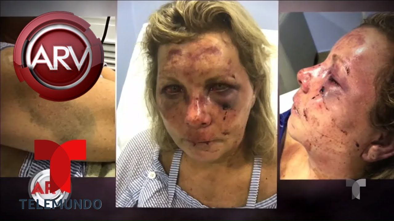 Investigan brutal agresión a mujer en Rep. Dominicana | Al Rojo Vivo | Telemundo