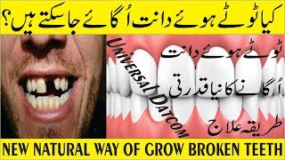 New Natural Treatment Methods Grow Broken Teeth in Urdu/Hindi - دانت اُگانے کا نیا قدرتی طریقہ علاج
