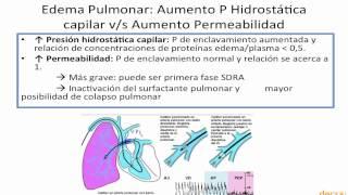 Rápido edema pronóstico pulmonar del
