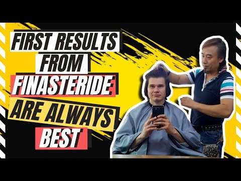 Finasteride Results Before And After: When to expect Best Finasteride Resutls