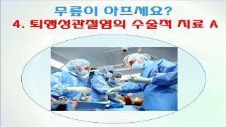 김태균교수 건강강좌 | 무릎이 아프세요? | 퇴행성관절…