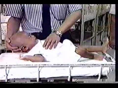 IMCI] cách đánh giá trẻ sốt