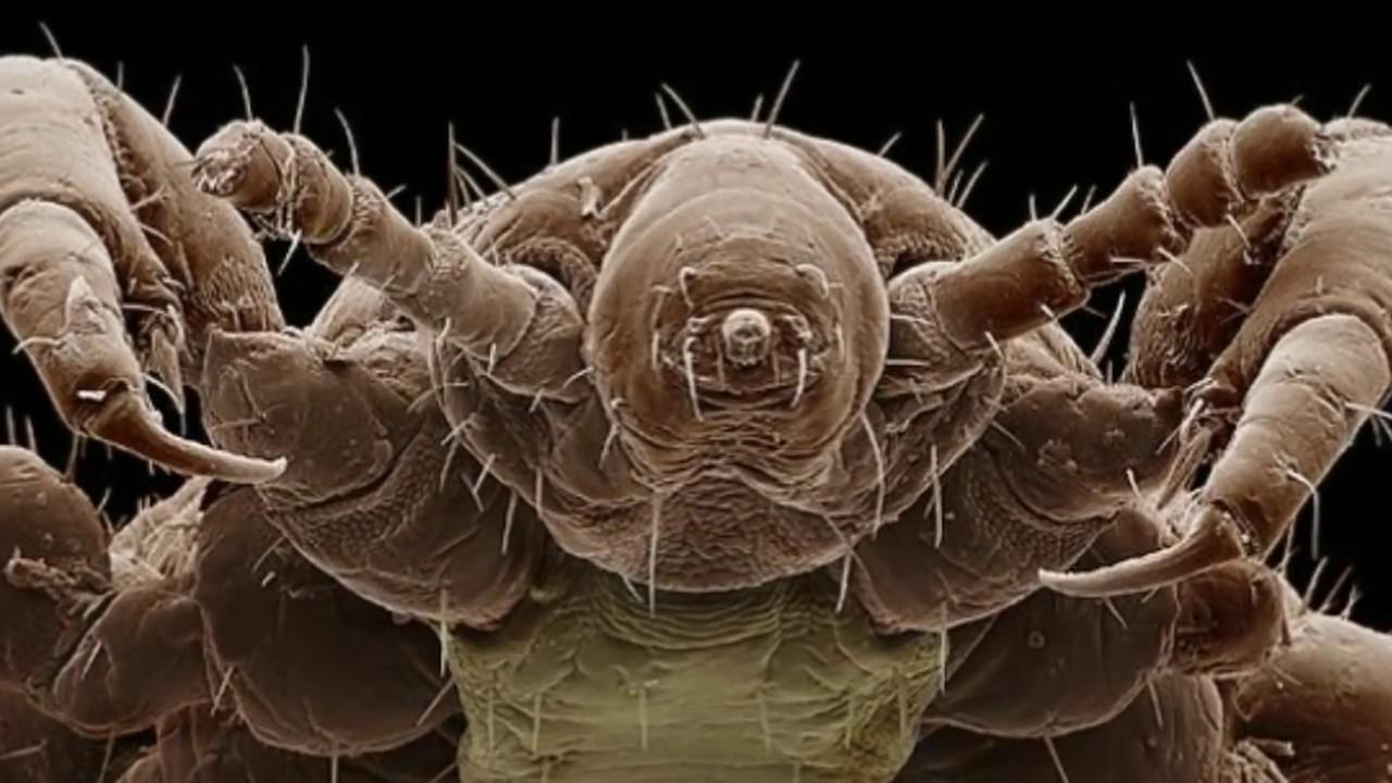 Baby lice 47