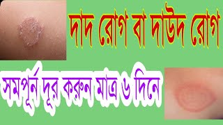 Top three (3) homeopathy medicine for ringworm .In bangla health tips.