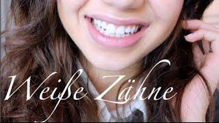 Weiße Zähne - in 1 Stunde günstig zu Hause aufhellen!