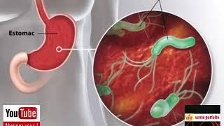 Comment savoir si j'ai des ulcères d'estomac?