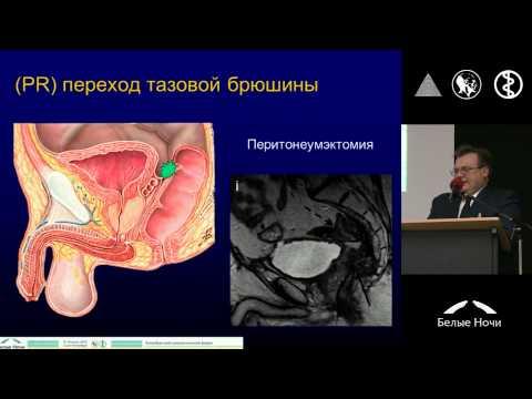 Современные возможности хирургического лечения рака прямой кишки