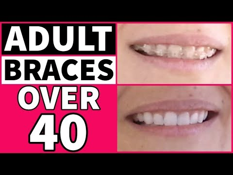 Adult Braces After 40 | My Experience