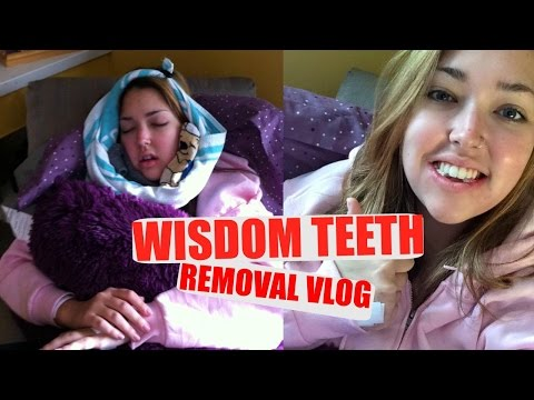 WISDOM TEETH REMOVAL   AFTERHEALING   Erika Anderson