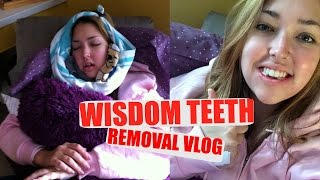 Video WISDOM TEETH REMOVAL | + AFTER/HEALING  | Erika Anderson download MP3, 3GP, MP4, WEBM, AVI, FLV Desember 2017