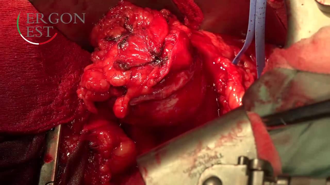 Хирургические шовные материалы премиум-класса.