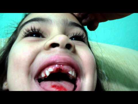 Trailer do filme Tooth - Uma Fada Diferente