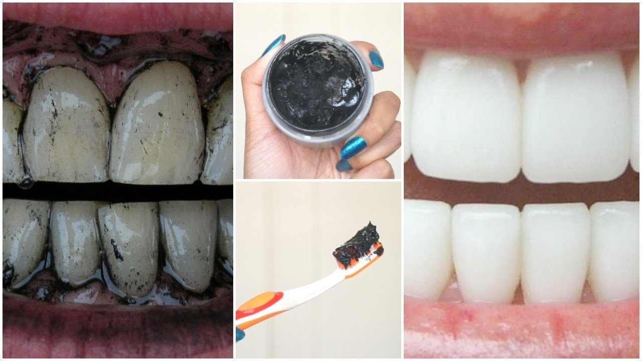 diy charcoal teeth whitening how to make charcoal toothpaste at home for white teeth in minutes. Black Bedroom Furniture Sets. Home Design Ideas