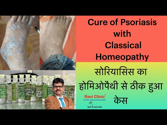 A case of Psoroasis healed with homeopathy Dr Ravi Singh