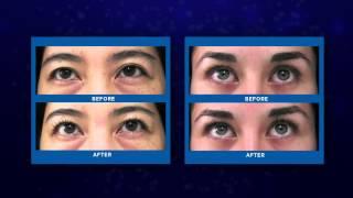 Video Giới thiệu về thuốc dài mi MD Lash Factor