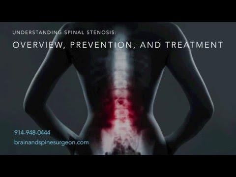 Understanding Spinal Stenosis