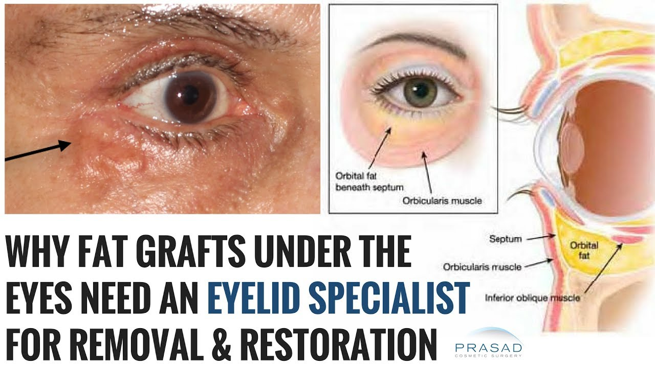 Removal of Grafted Fat Under the Eyes, and Lower Eyelid