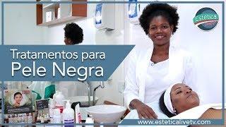 Tratamentos para Pele Negra
