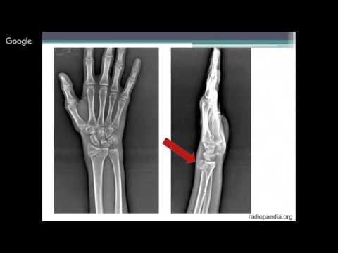 Перелом лучевой кости. Причины, симптомы, виды, первая