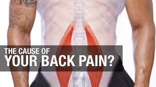 Rückenschmerzen Mit Übungen Ab (WAS ZU TUN)