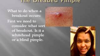 the dreaded pimple Thumbnail