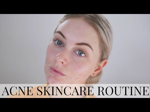 SKIN CARE ROUTINE TO CLEAR ACNE | Holly Carran