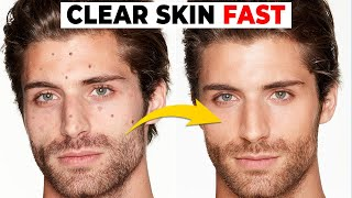 5 Habits That Are DESTROYING Your Skin | Alex Costa