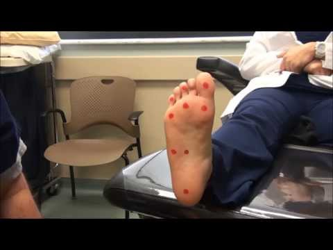 Neurologic Examination of the Foot: 10gm Monofilament Test
