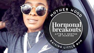Hormones or Biotin?