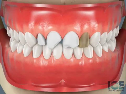 Dr. Wolfe, General Dentist in Rochester Hills, MI Shares a Video on Porcelain Veneers