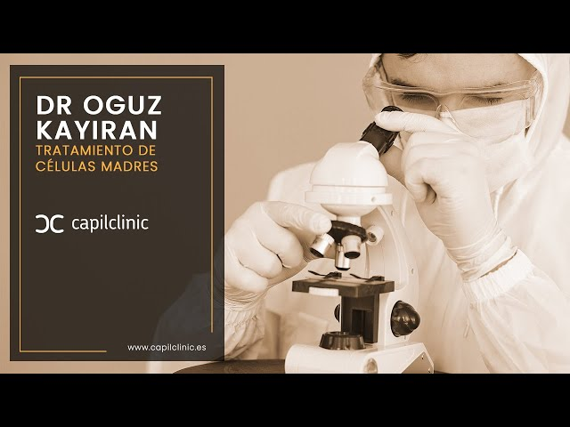 Tratamiento células madres  con Capilclinic y Dr Oguz Kayiran