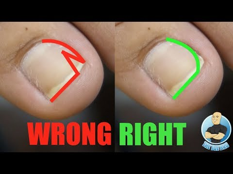 Easy Diy At Home Treatment For Ingrown Toenails Using
