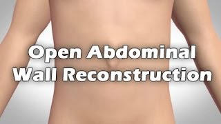 Open Abdominal Wall Reconstruction