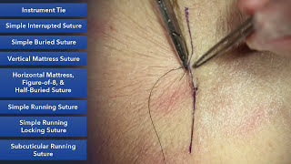 Suture Skills Course - Learn Best Suture Techniques thumbnail