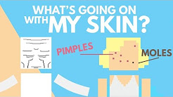 hqdefault - Are Pimples On Moles Normal