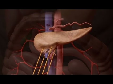 New Study Shows IRE Treatment Significantly Improves Remission Rates for Pancreatic Cancer