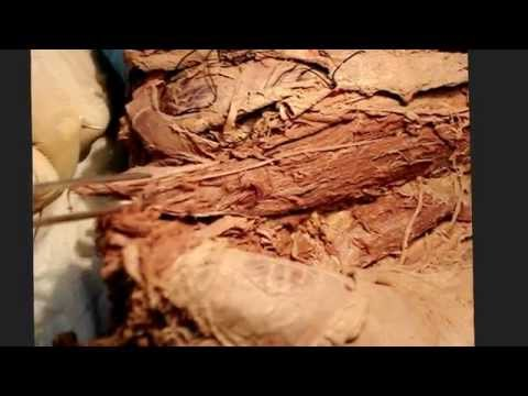 TRUNK .2 (Posterior abdominal wall &branches of lumbar plexus)