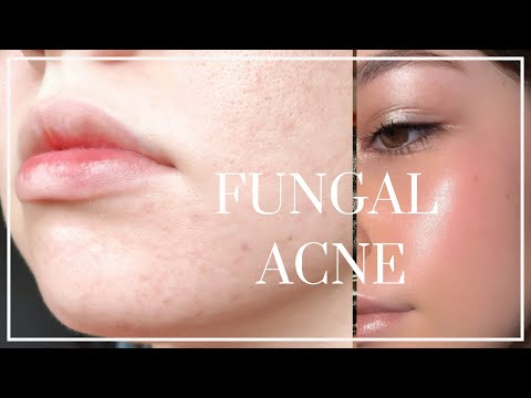 how-to-get-rid-of-fungal-acne-//-beat-tiny-bumps